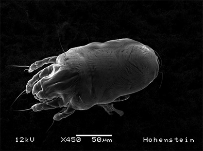 Pic: Detailed image of a house dust mite taken by a scanning electron microscope. © Hohenstein Group